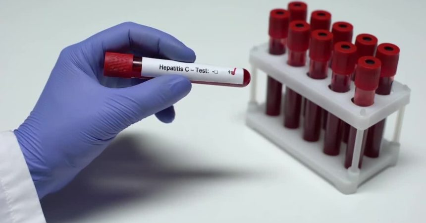 Screening HCV, stanziati 71,5 milioni